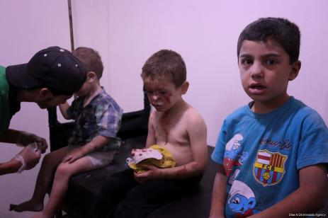 Niños heridos esperan recibir tratamiento en un hospital de Sahra después de que las fuerzas del régimen de Assad realizaran un ataque aéreo sobre la zona de conflicto, la ciudad de Arbin, en la región de Ghouta oriental de Damasco, Siria, el 25 de julio de 2017 [Diaa Al Din / Agencia Anadolu]