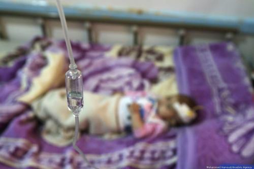 Criança desnutrida recebe tratamento no hospital Sabeen, em Sanaa, capital do Iêmen, 7 de outubro de 2019 [Mohammed Hamoud/Agência Anadolu]