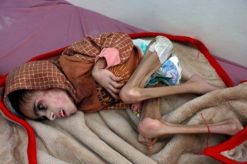 Menino iemenita com apenas 7 quilos recebe tratamento em um hospital de Sanaa, Iêmen, 29 de dezembro de 2020 [Mohammed Hamoud/Getty Images]