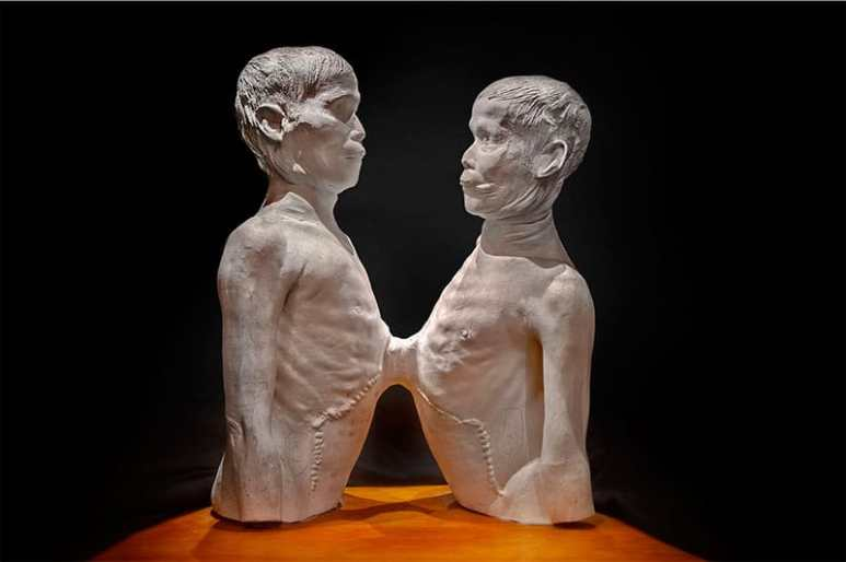 "Death Cast of ""Siamese Twins"""