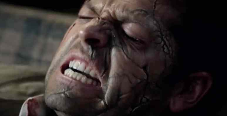 Not looking good for Cas, but he's been through worse right?