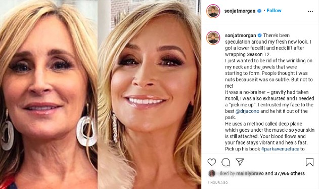Sonja Morgan had some work done.