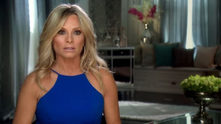 Former RHOC housewife, Tamra Judge, has peel procedure done on her face.