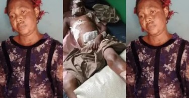 Woman Destroys 12-year-old Boy's Body with Hot Knife Over Missing N5,000 (Photo)