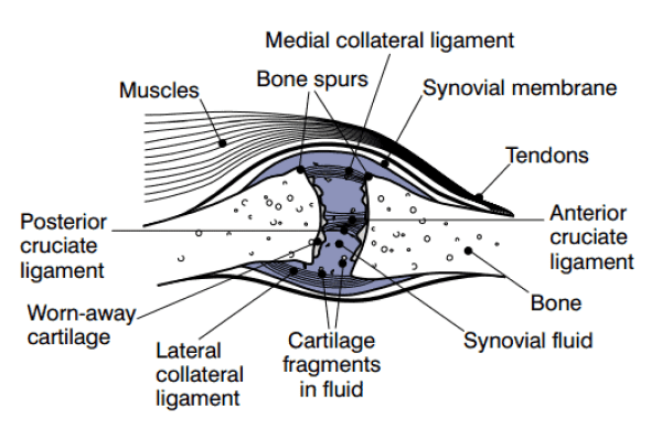 Representation of a joint with severe osteoarthritis (Photo Credit: National Institutes of Health)