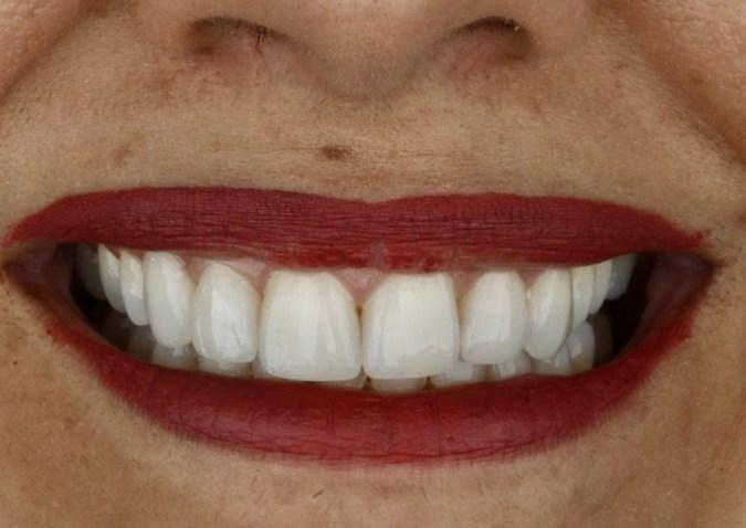 Sorriso com Lente de contato dental