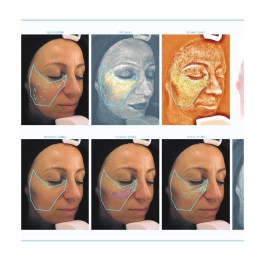 Image of skin scan from Visia machine