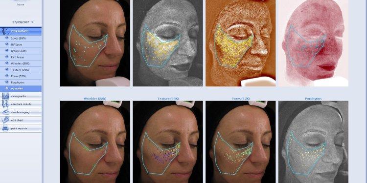 Environ Skin Analysis