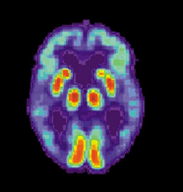 Alzheimer's Brain National Institute of Aging