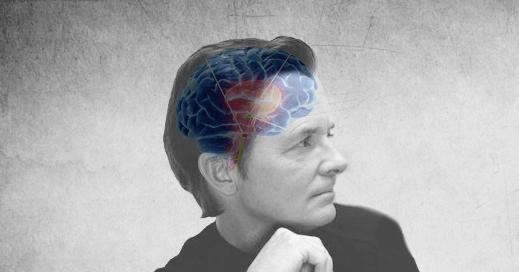 Michael J Fox Parkinsons