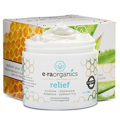 Psoriasis & Eczema Cream 4oz Advanced Healing Non-Greasy Moisturizer with Organic Aloe Vera, Manuka Honey, Hemp Oil & More. Best Natural Moisturizer for Dermatitis, Rosacea, Shingles, Dry, Itchy Skin