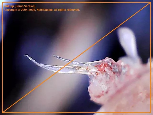 NBC Left Field's Exposé of Morgellons - Morgellons Survey
