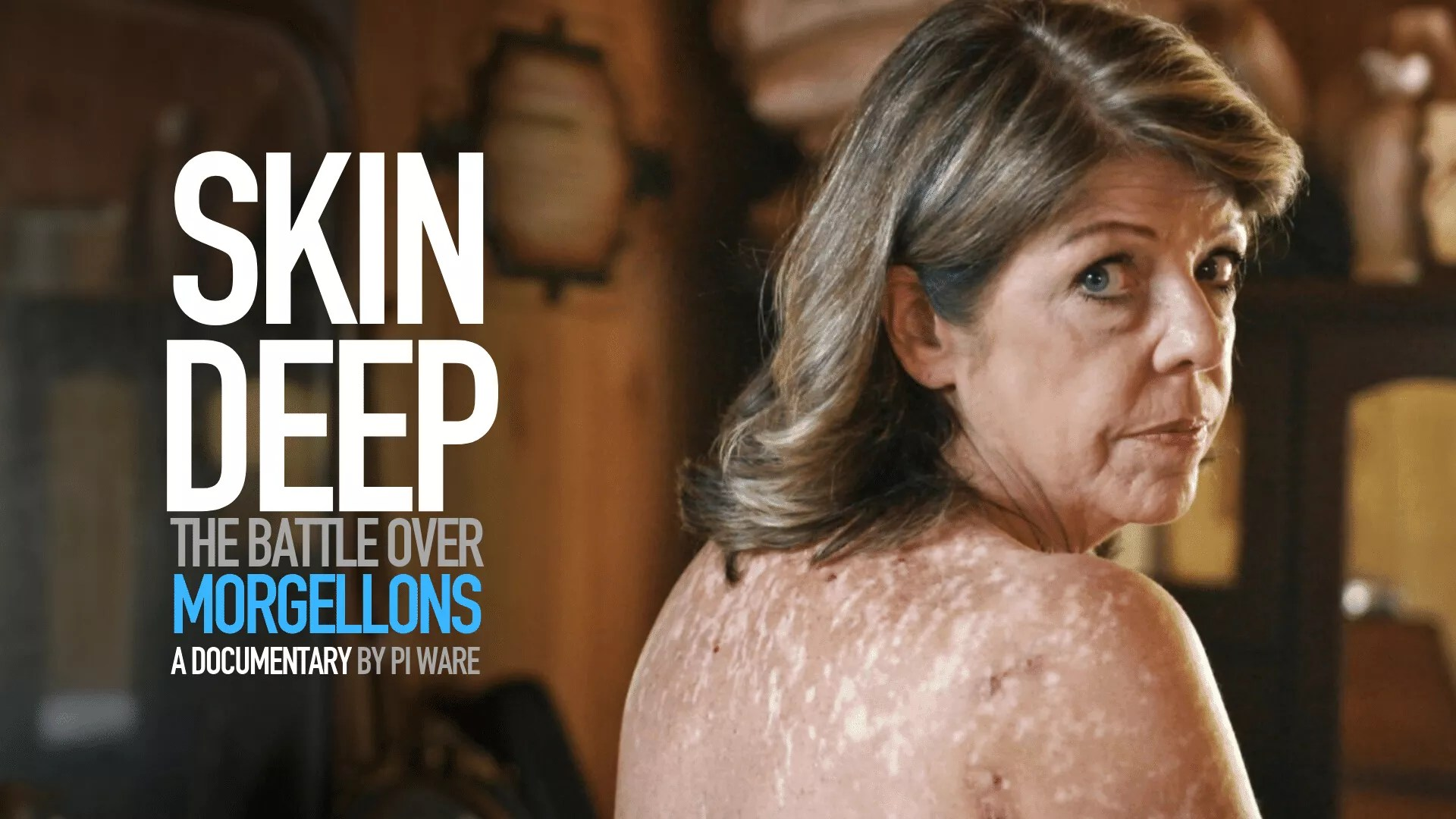 Skin Deep Morgellons Movie
