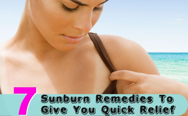 Sunburn Remedies To Give You Quick Relief