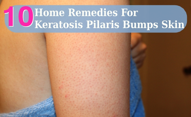 Home Remedies For Keratosis Pilaris Bumps Skin
