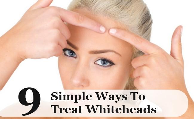 Simple Ways To Treat Whiteheads