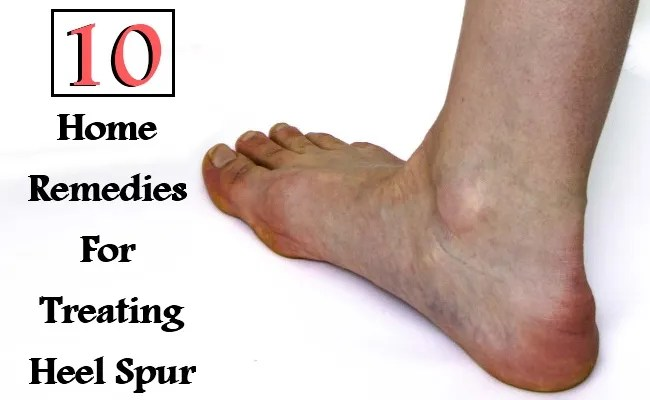 10 Effective Home Remedies For Treating Heel Spur