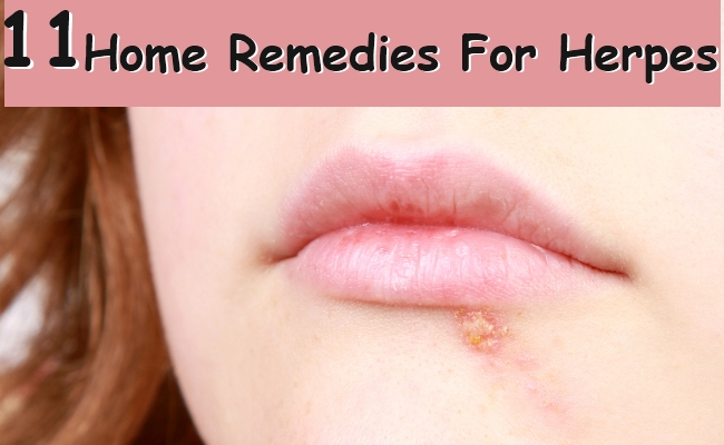 Home Remedies For Herpes