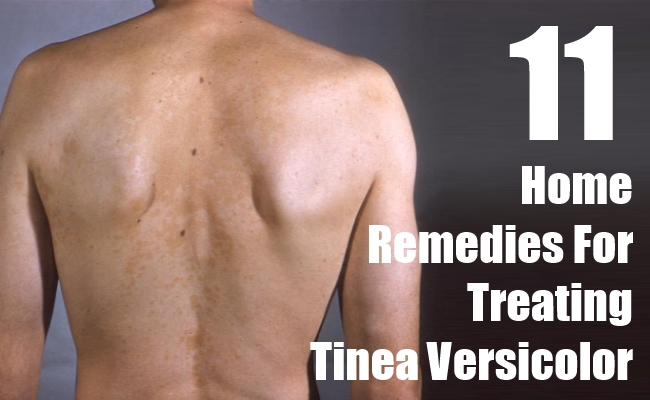 Home Remedies For Treating Tinea Versicolor