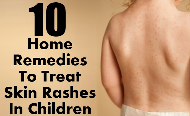 Home Remedies To Treat Skin Rashes In Children