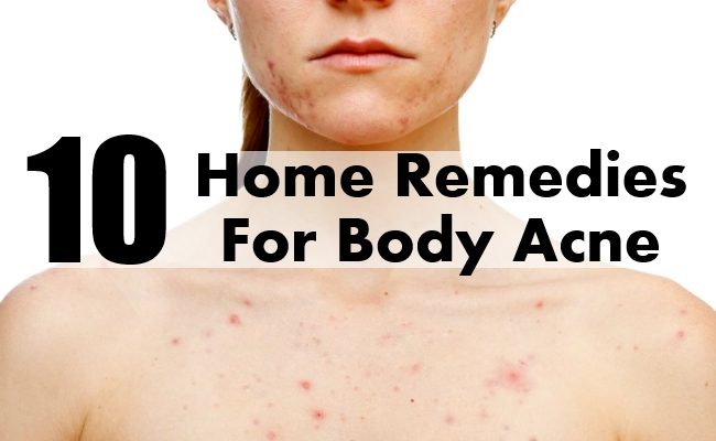 body acne home remedies