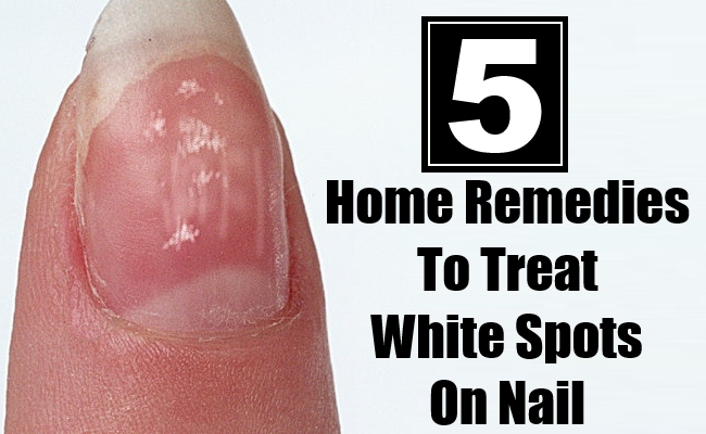 Home Remedies To Treat White Spots On Nail