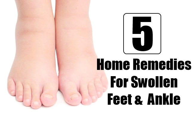 Home Remedies For Swollen Feet And Ankle