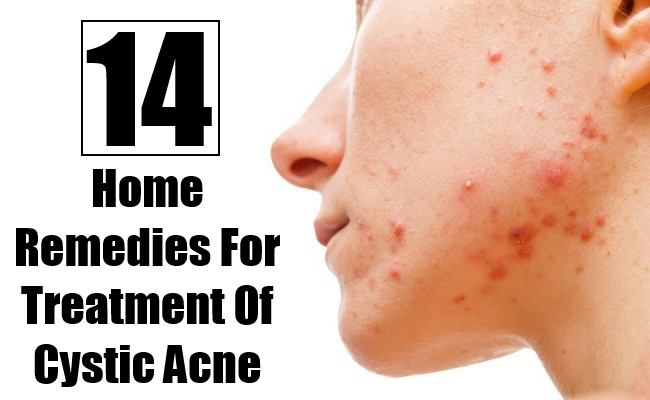 home remedy for cystic acne