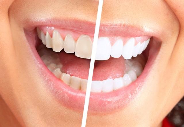 وصفه سحريه لتبيض الاسنان