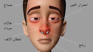 علاج حساسيه الانف