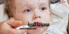 جدري الماء مرض جلدي وعدوى فيروسية