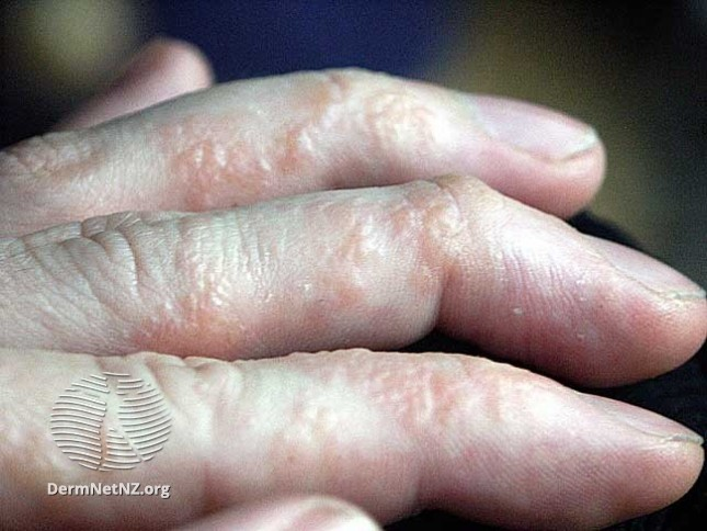 dyshidrotic eczema / pompholyx in Fingers