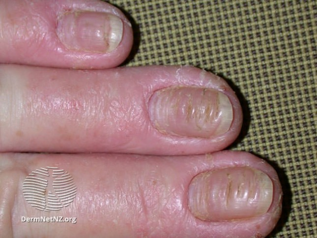 Nail beds damaged by dyshidrotic eczema / pompholyx in fingers
