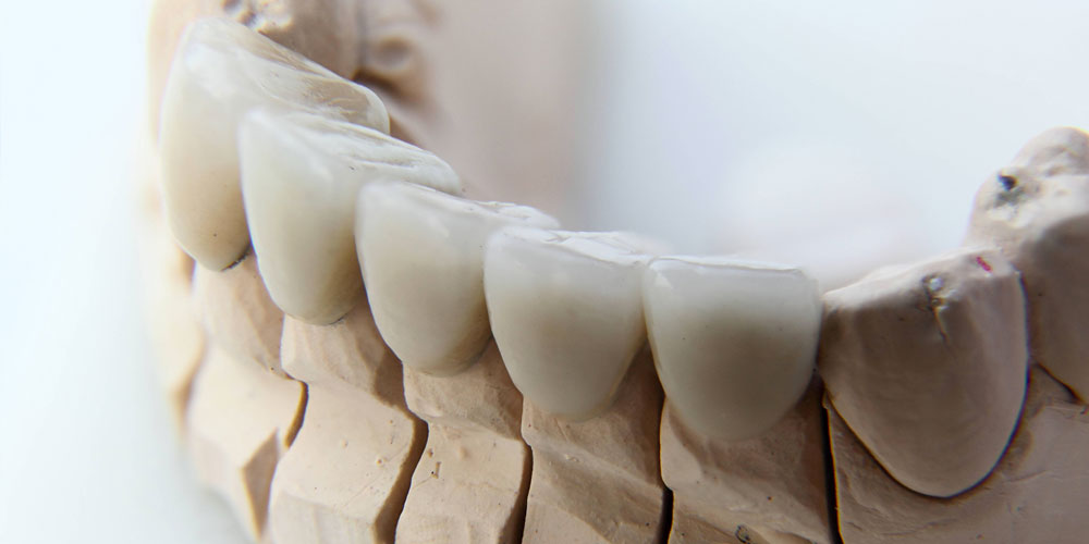 dental crowns vancouver
