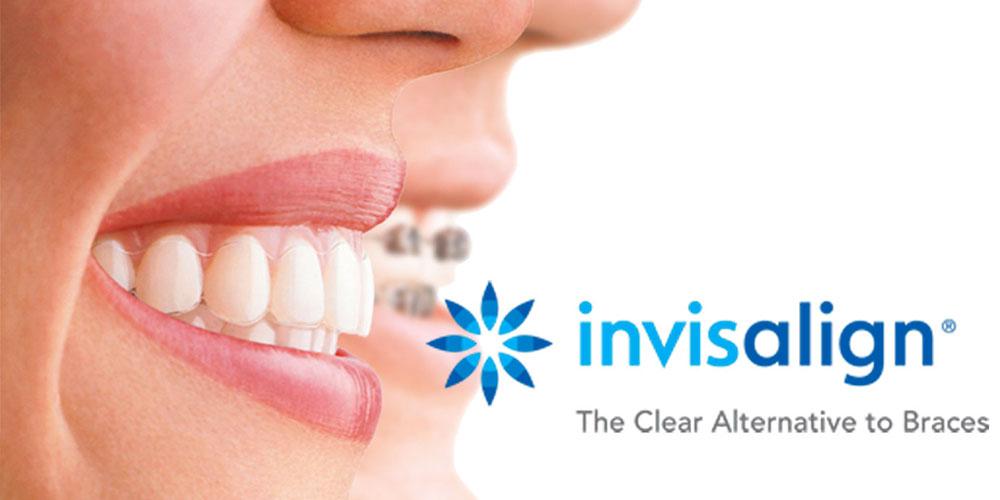 vancouver dentist invisalign