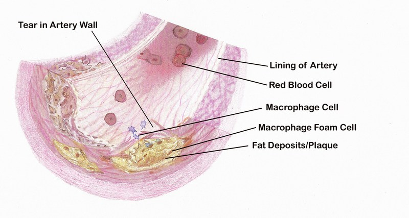 Section of a Plaque-Filled Artery