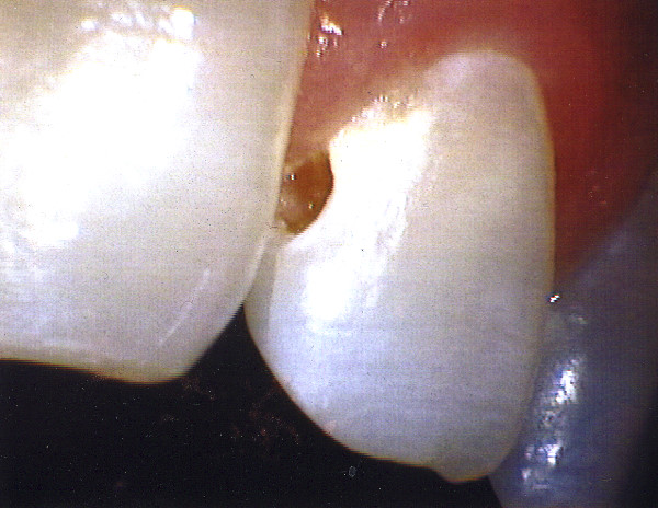 Tooth Decay & Decalcification