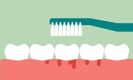 Gum Recession: The Causes, Symptoms, And Treatments.