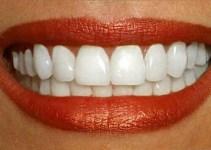 Jak mieć białe zęby