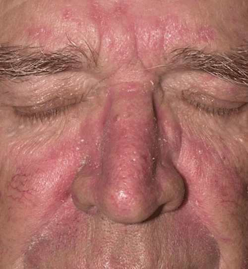 Dermatite seborréica (face)