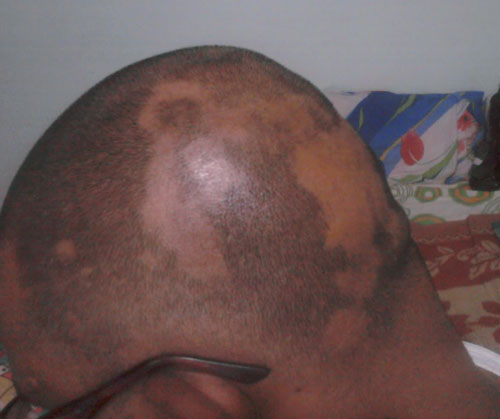 Iodine Hair Loss Forum – Anexa Beauty