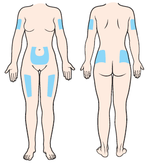 Figur 1. Injektionsplatser