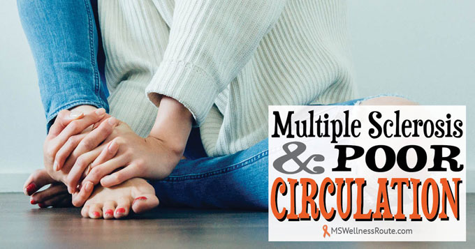 MS and Poor Circulation