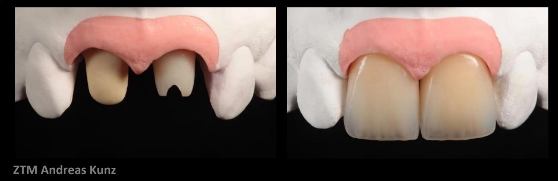 Implantat-Frontzahnästhetik mit Konzept