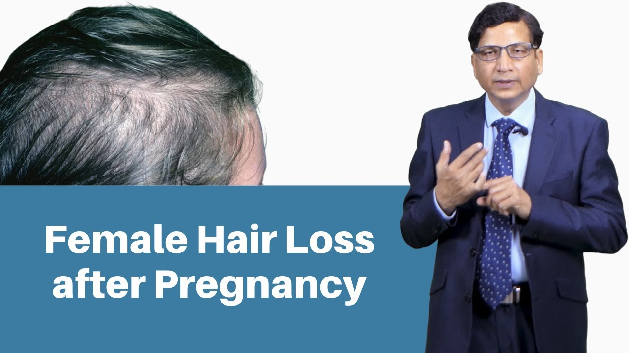 Female Hair Loss After Pregnancy | Ways To Prevent Hair Fall After Pregnancy | Dr. Anil Garg