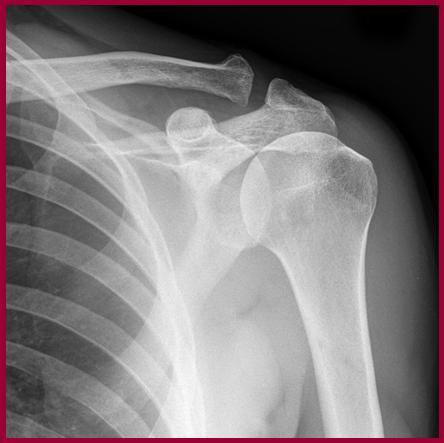 Do You Really Need An X Ray