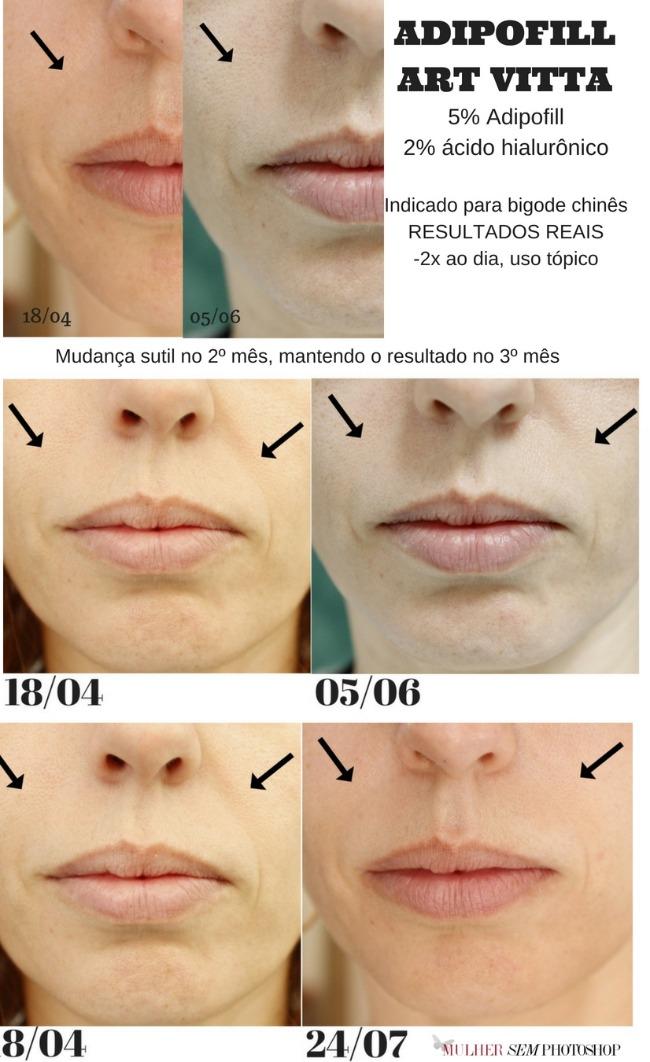 Adipofill Art Vitta - bigode chinês - antes e depois