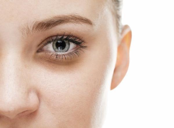 4 tipos de olheiras