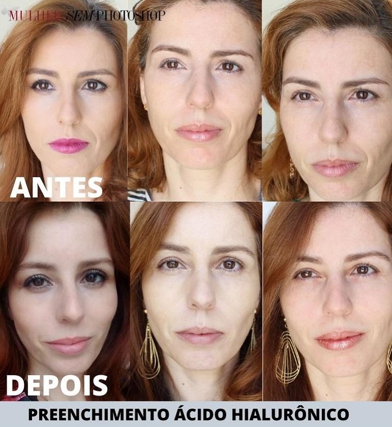 preenchimento ácido hialurônico em BH ANTES E DEPOIS