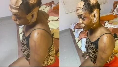 Shocking As Kidnappers Damaged A Lady's Face